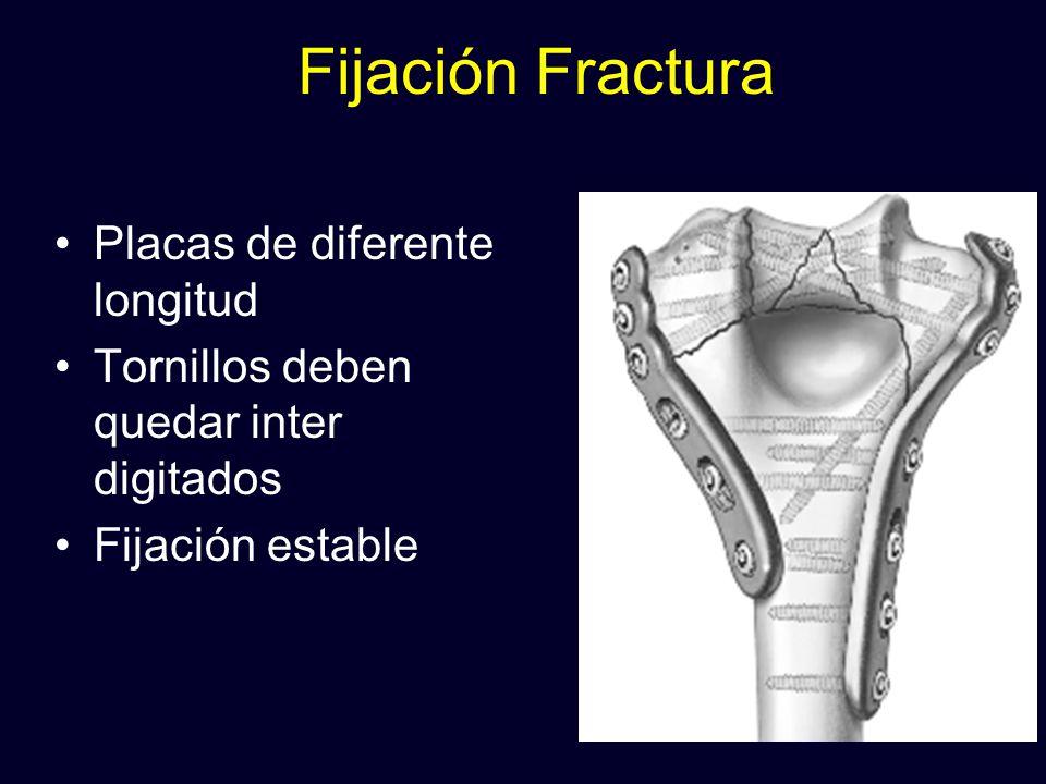 Fijación Fractura Placas de diferente longitud
