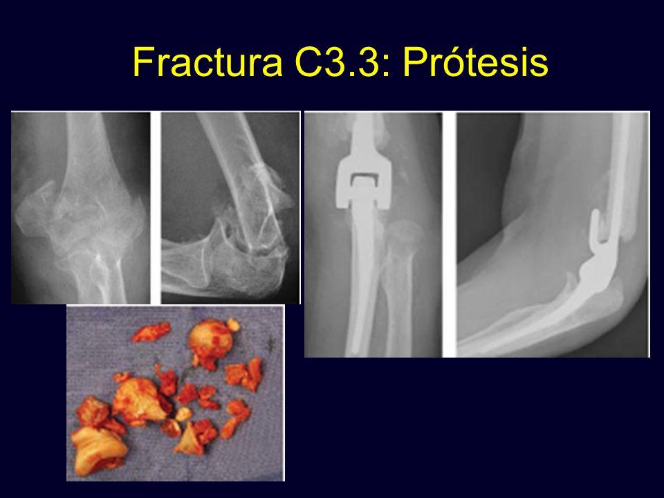 Fractura C3.3: Prótesis