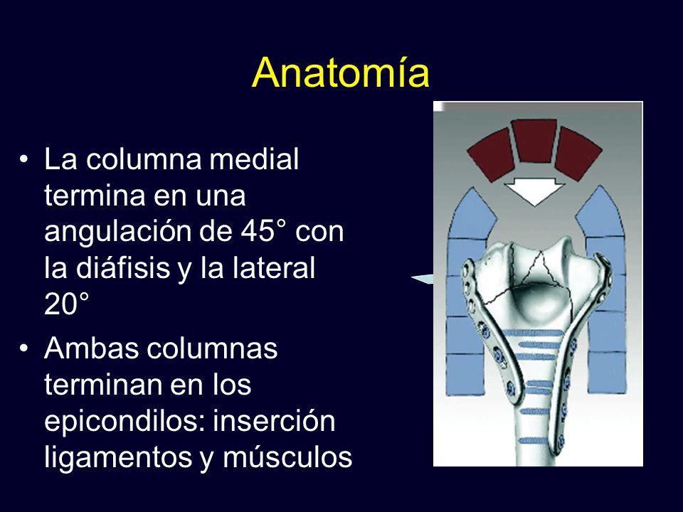Anatomía La columna medial termina en una angulación de 45° con la diáfisis y la lateral 20°