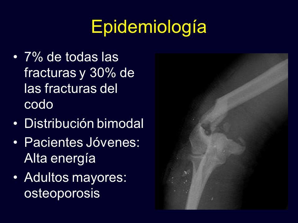 Epidemiología 7% de todas las fracturas y 30% de las fracturas del codo. Distribución bimodal. Pacientes Jóvenes: Alta energía.