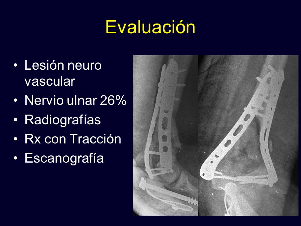 Evaluación Lesión neuro vascular Nervio ulnar 26% Radiografías