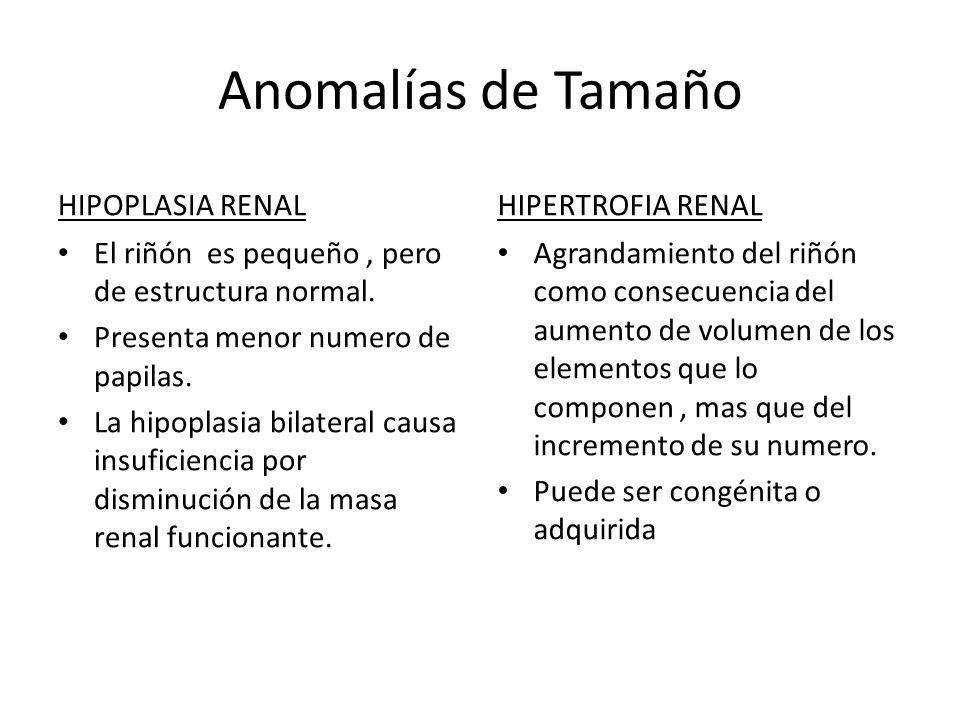 Anomalías de Tamaño HIPOPLASIA RENAL HIPERTROFIA RENAL
