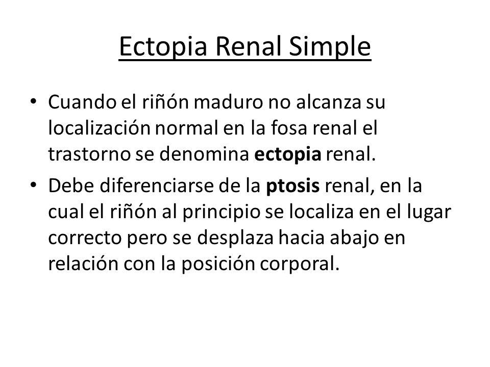Ectopia Renal Simple Cuando el riñón maduro no alcanza su localización normal en la fosa renal el trastorno se denomina ectopia renal.