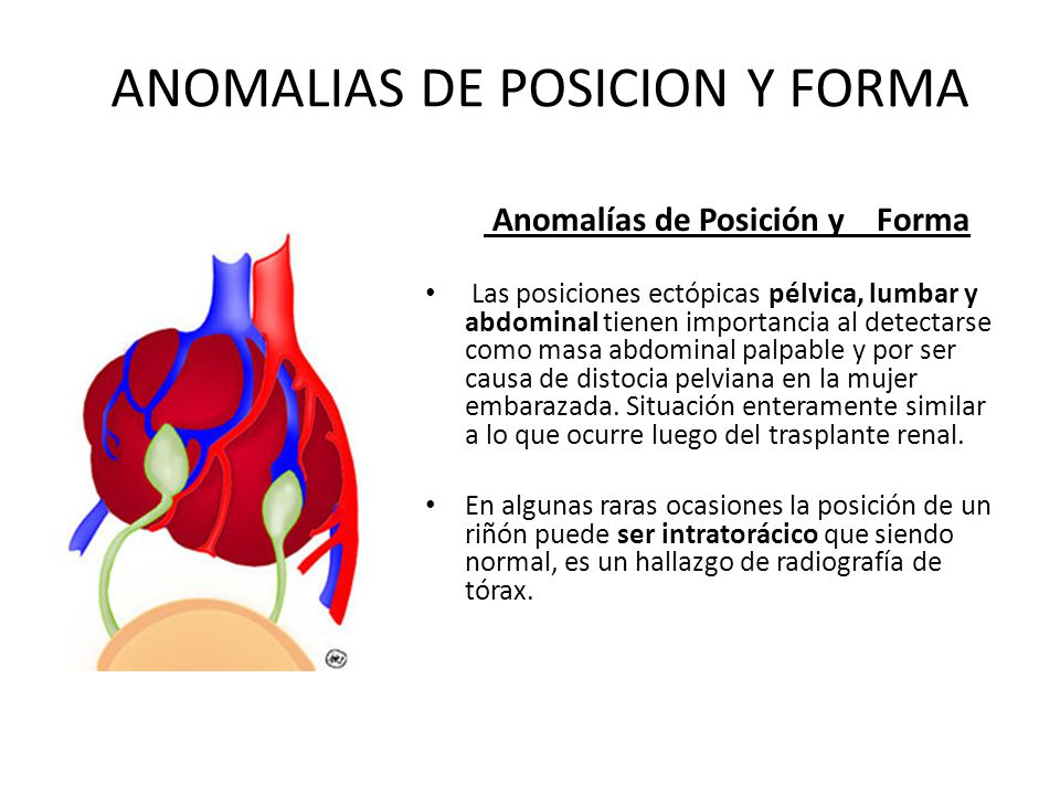 ANOMALIAS DE POSICION Y FORMA