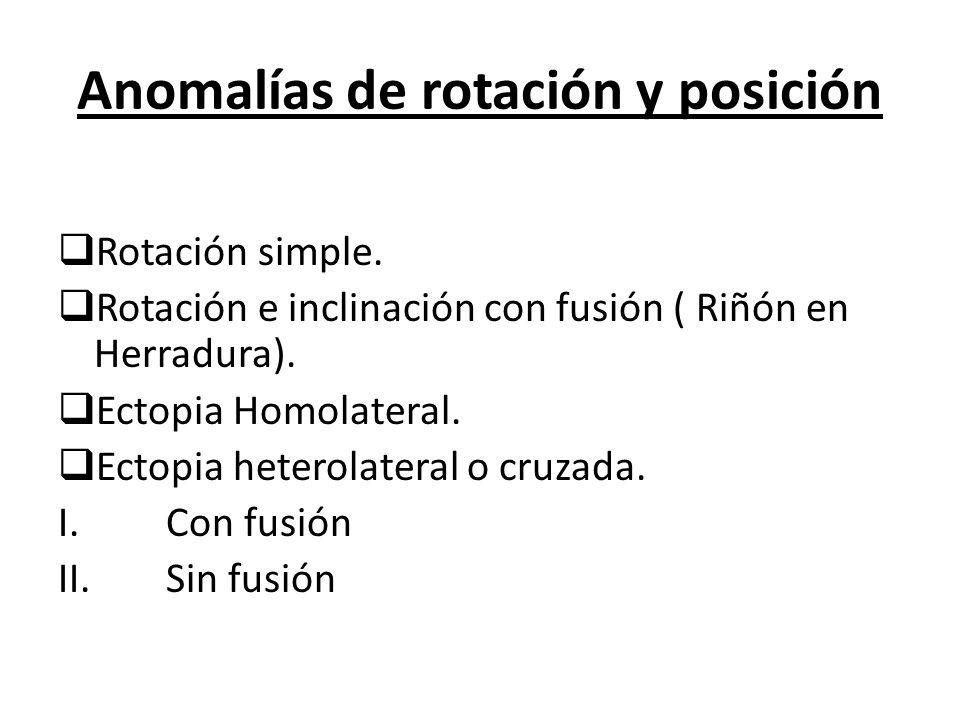 Anomalías de rotación y posición
