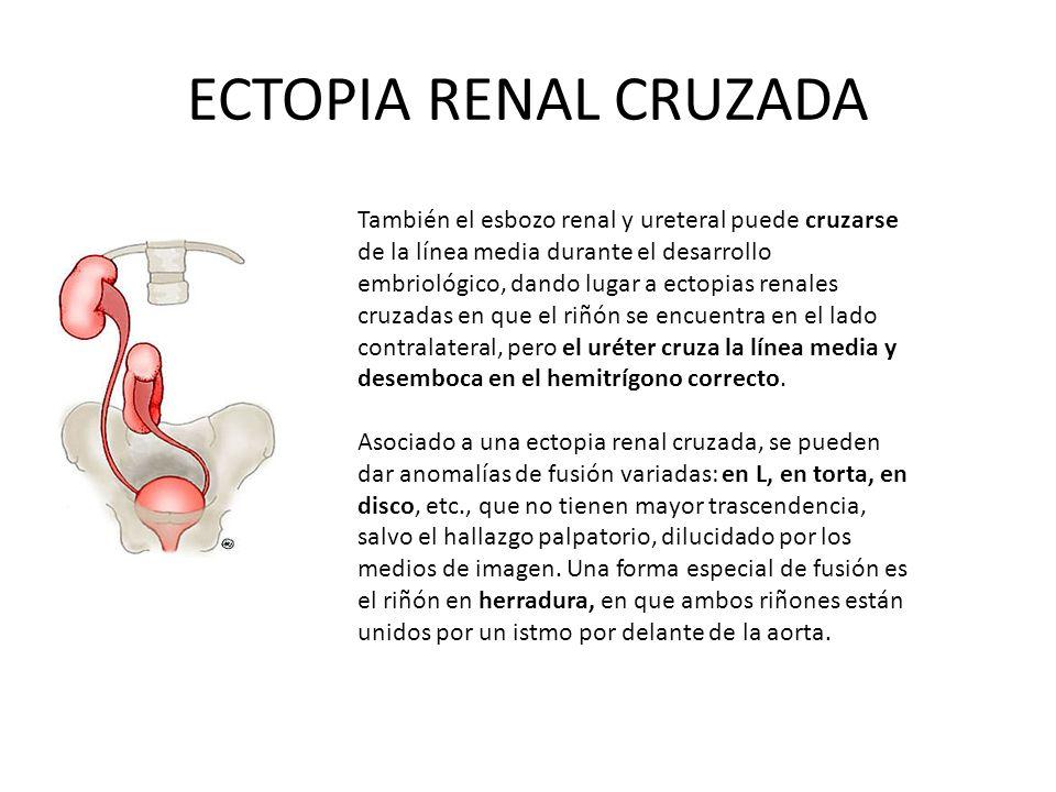 ECTOPIA RENAL CRUZADA