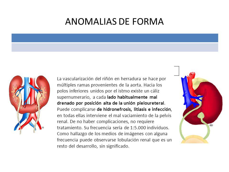 ANOMALIAS DE FORMA