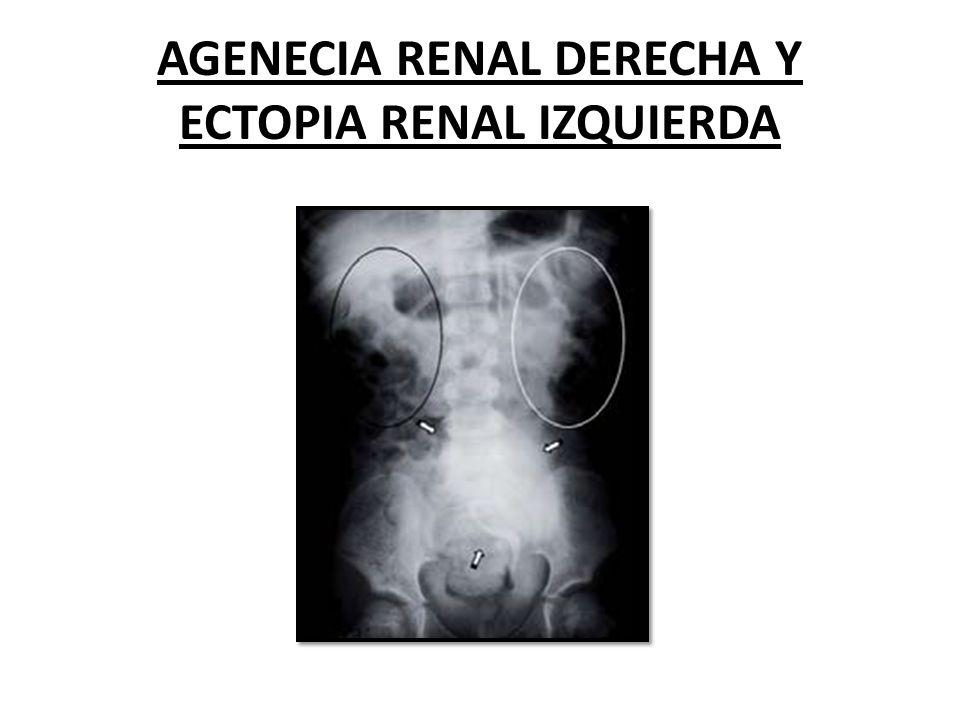 AGENECIA RENAL DERECHA Y ECTOPIA RENAL IZQUIERDA
