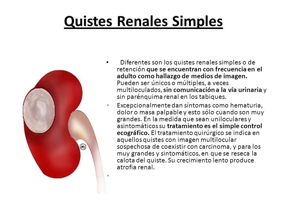 Quistes Renales Simples