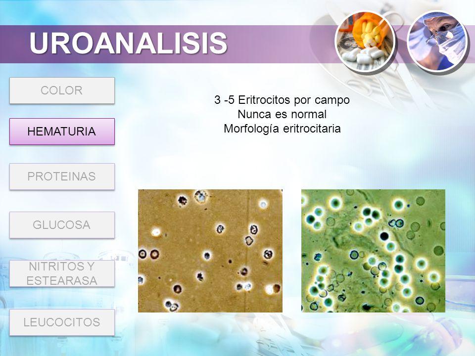 UROANALISIS COLOR 3 -5 Eritrocitos por campo Nunca es normal