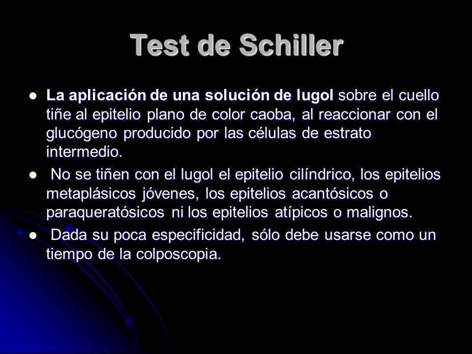 Test de Schiller