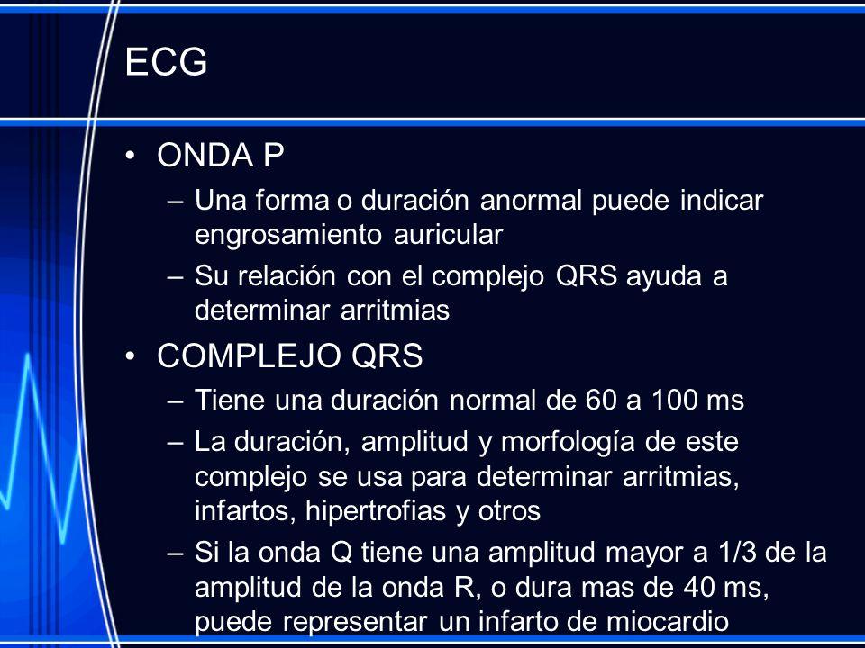 ECG ONDA P. Una forma o duración anormal puede indicar engrosamiento auricular. Su relación con el complejo QRS ayuda a determinar arritmias.