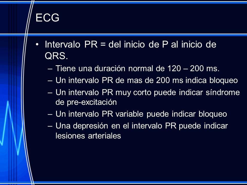 ECG Intervalo PR = del inicio de P al inicio de QRS.