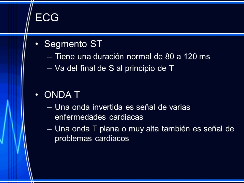 ECG Segmento ST ONDA T Tiene una duración normal de 80 a 120 ms