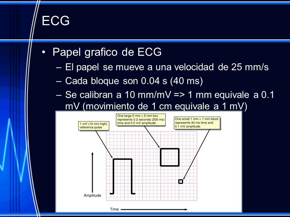 ECG Papel grafico de ECG El papel se mueve a una velocidad de 25 mm/s