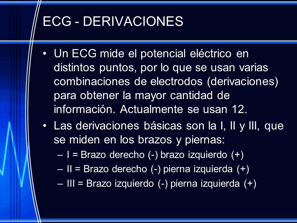 ECG - DERIVACIONES