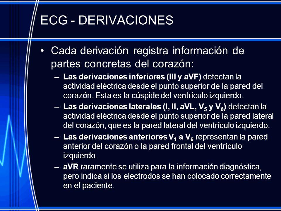 ECG - DERIVACIONES Cada derivación registra información de partes concretas del corazón: