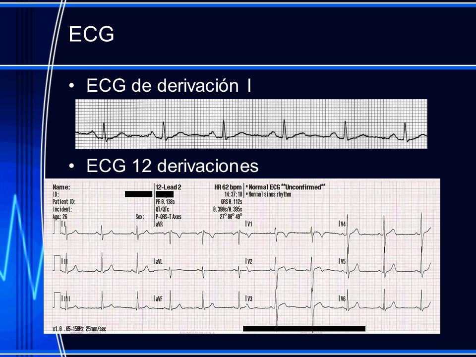ECG ECG de derivación I ECG 12 derivaciones