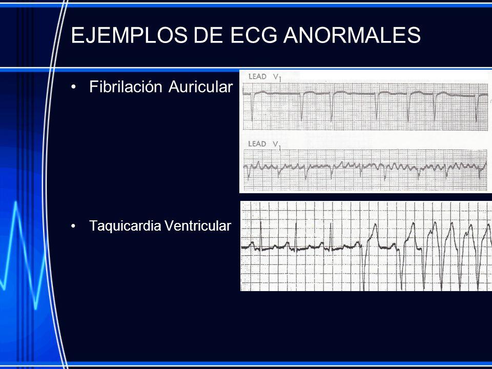 EJEMPLOS DE ECG ANORMALES