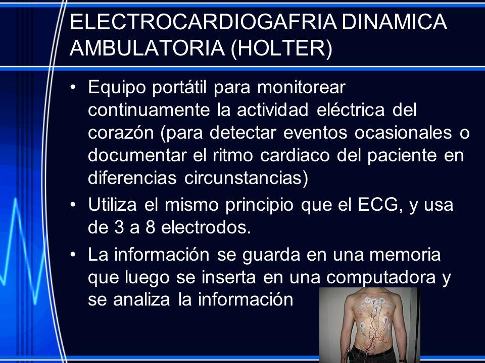 ELECTROCARDIOGAFRIA DINAMICA AMBULATORIA (HOLTER)