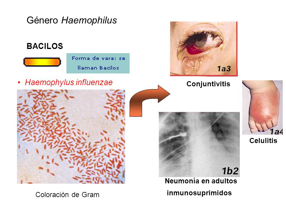 Género Haemophilus BACILOS Haemophylus influenzae Conjuntivitis