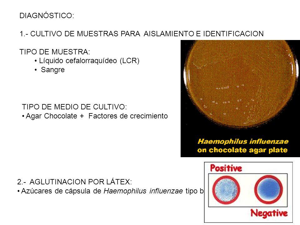DIAGNÓSTICO: 1.- CULTIVO DE MUESTRAS PARA AISLAMIENTO E IDENTIFICACION. TIPO DE MUESTRA: Líquido cefalorraquídeo (LCR)