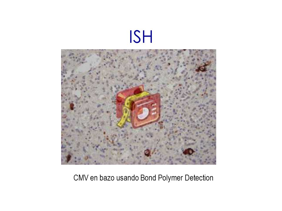 CMV en bazo usando Bond Polymer Detection
