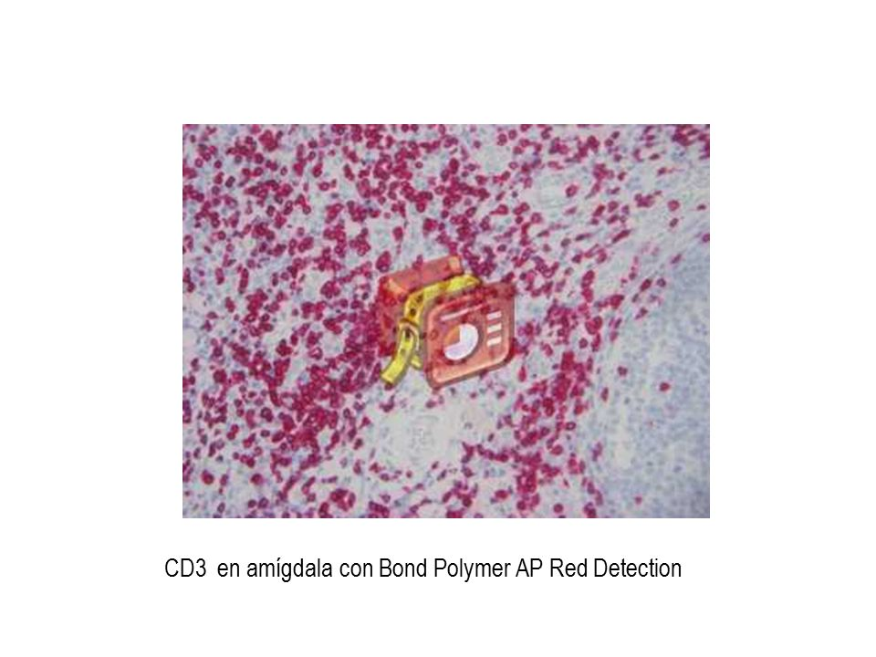 CD3 en amígdala con Bond Polymer AP Red Detection