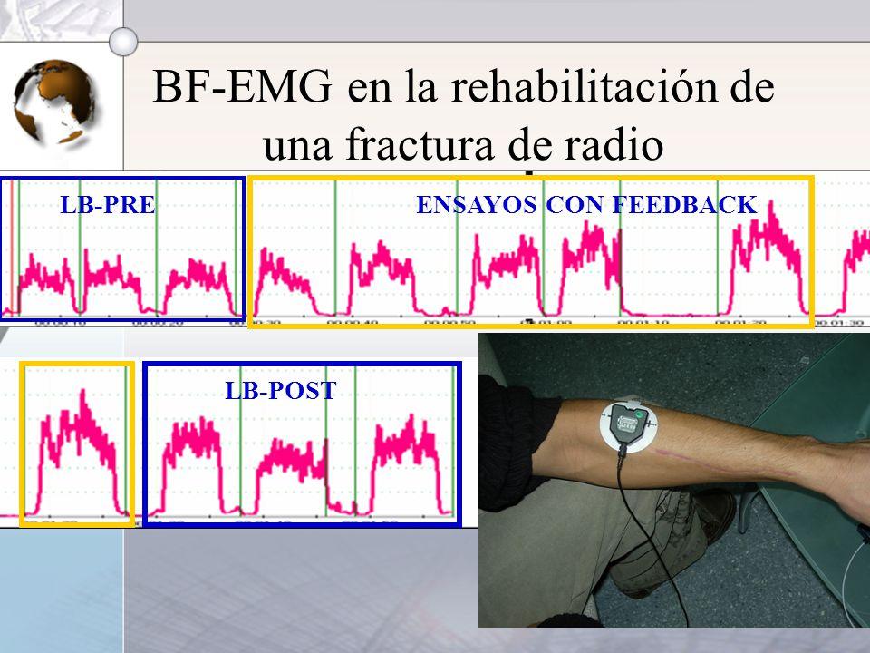BF-EMG en la rehabilitación de una fractura de radio