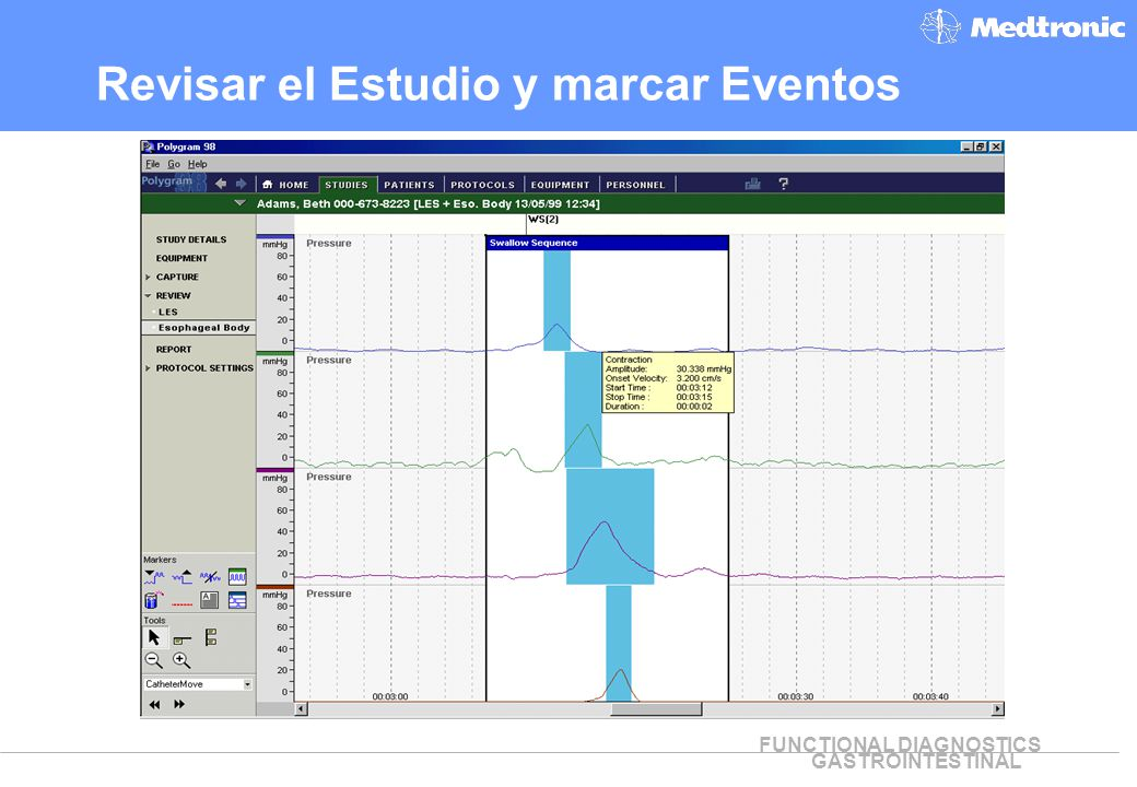 Revisar el Estudio y marcar Eventos