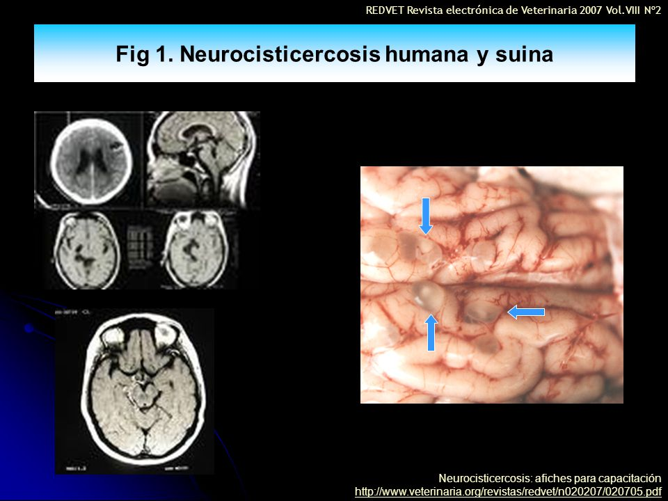 Fig 1. Neurocisticercosis humana y suina