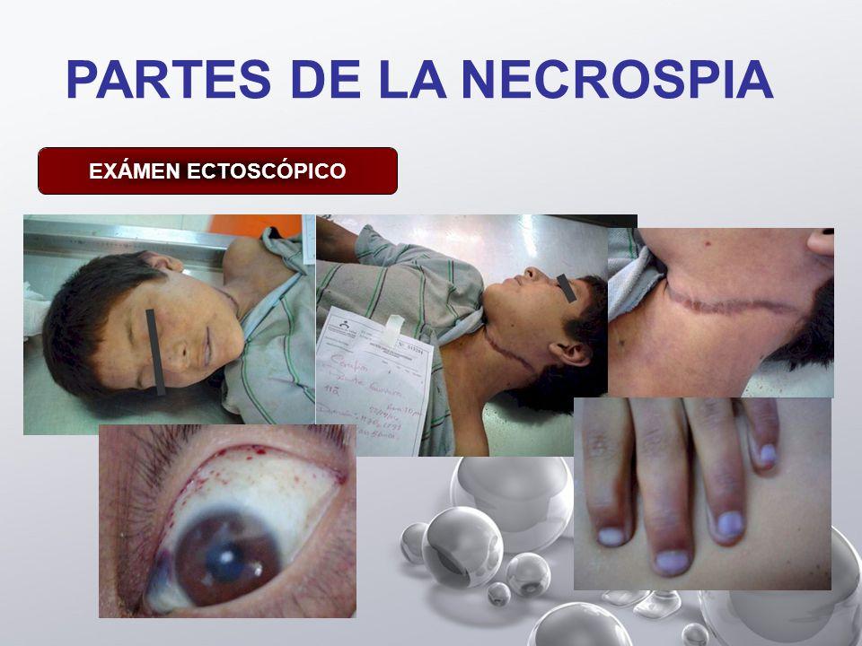 PARTES DE LA NECROSPIA EXÁMEN ECTOSCÓPICO