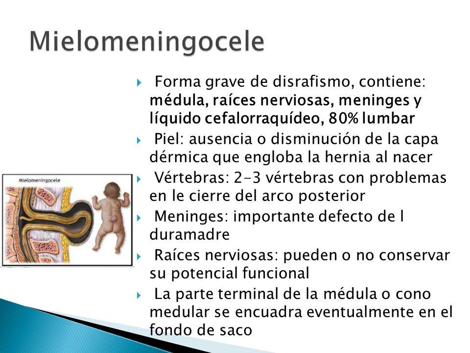 Mielomeningocele Forma grave de disrafismo, contiene: médula, raíces nerviosas, meninges y líquido cefalorraquídeo, 80% lumbar.