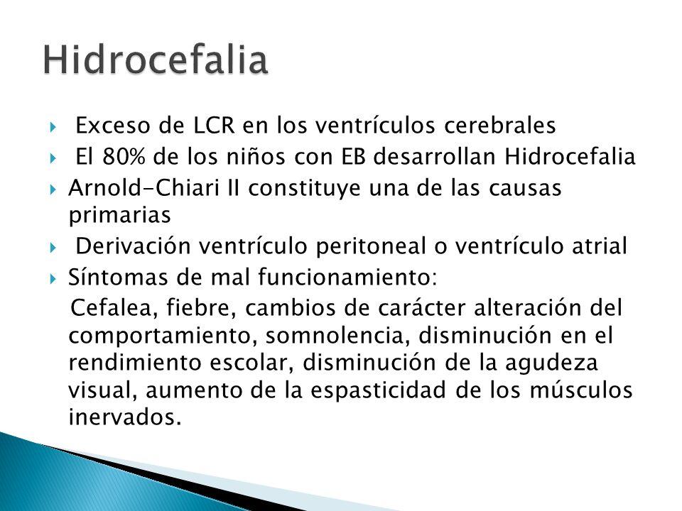Hidrocefalia Exceso de LCR en los ventrículos cerebrales