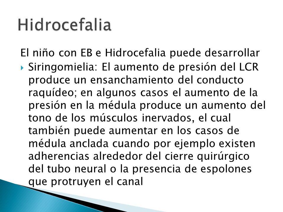 Hidrocefalia El niño con EB e Hidrocefalia puede desarrollar