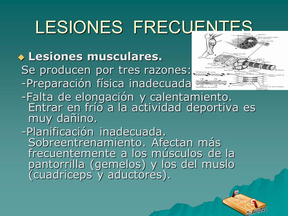 LESIONES FRECUENTES Lesiones musculares. Se producen por tres razones: