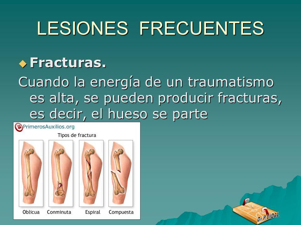 LESIONES FRECUENTES Fracturas.