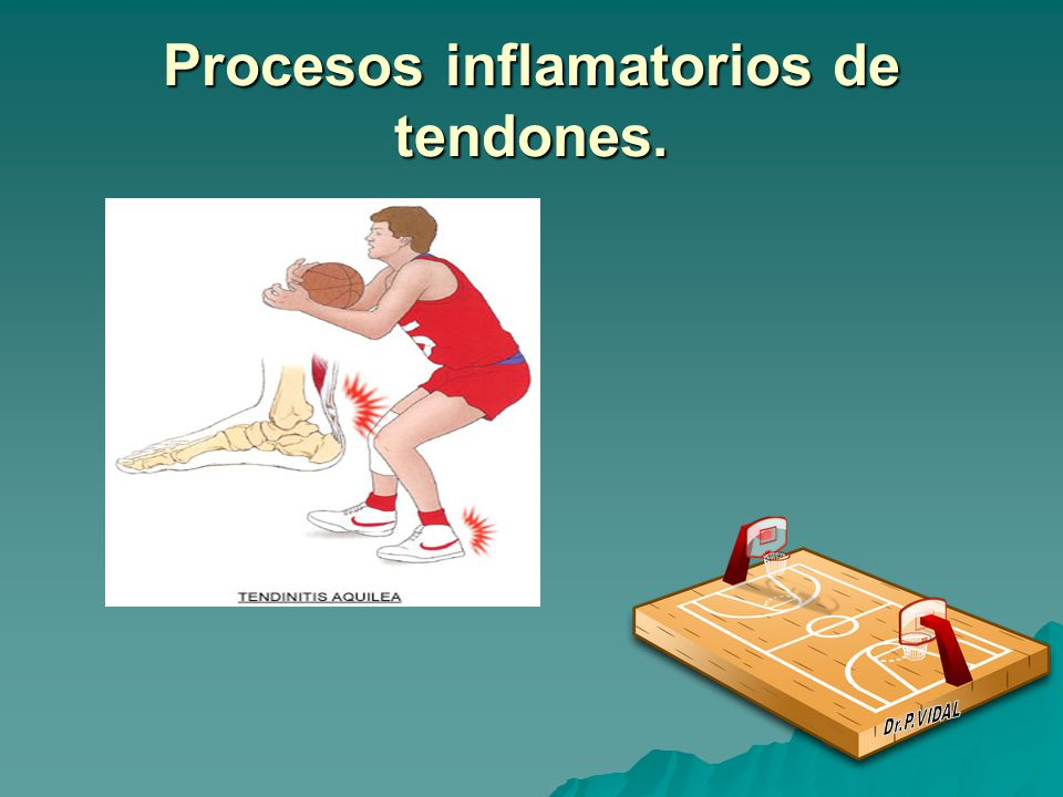 Procesos inflamatorios de tendones.
