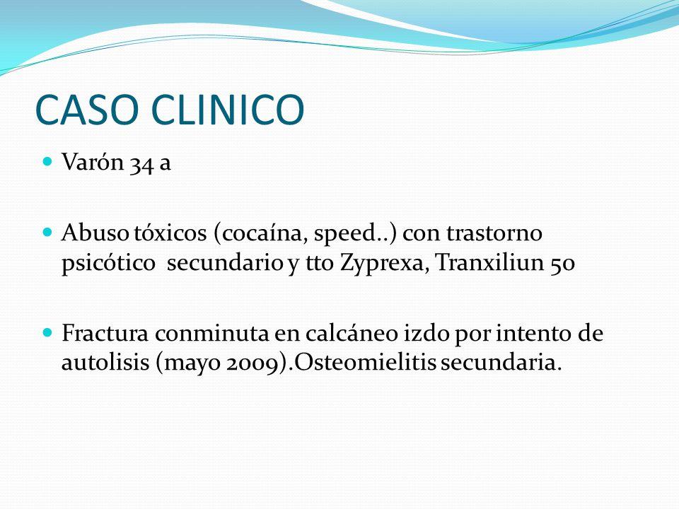 CASO CLINICO Varón 34 a. Abuso tóxicos (cocaína, speed..) con trastorno psicótico secundario y tto Zyprexa, Tranxiliun 50.