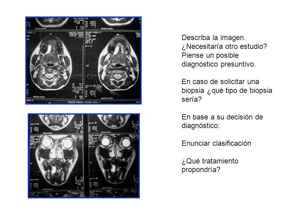 Describa la imagen. ¿Necesitaría otro estudio Piense un posible diagnóstico presuntivo.