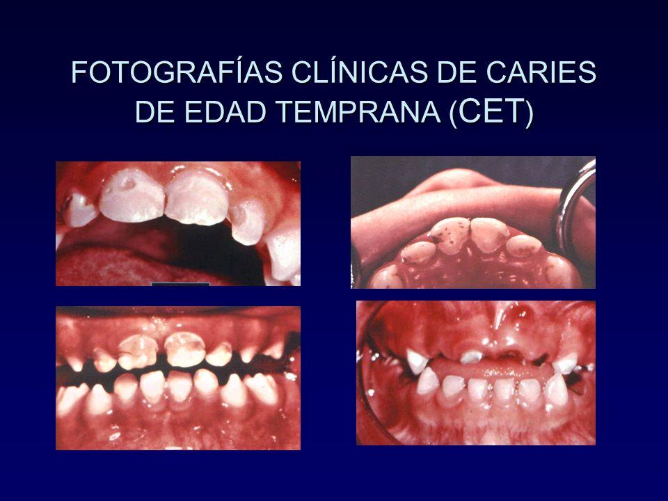 FOTOGRAFÍAS CLÍNICAS DE CARIES DE EDAD TEMPRANA (CET)
