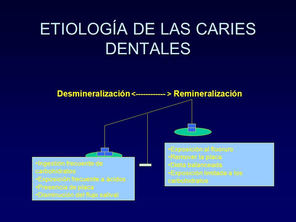ETIOLOGÍA DE LAS CARIES DENTALES