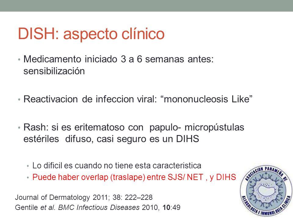 DISH: aspecto clínico Medicamento iniciado 3 a 6 semanas antes: sensibilización. Reactivacion de infeccion viral: mononucleosis Like