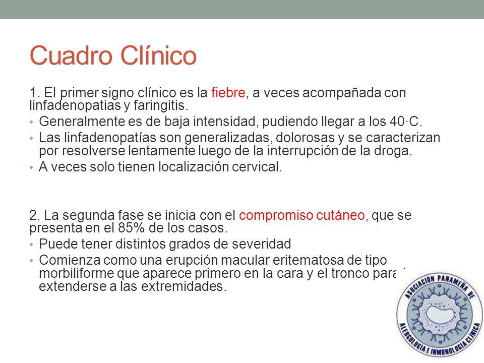 Cuadro Clínico 1. El primer signo clínico es la fiebre, a veces acompañada con linfadenopatias y faringitis.
