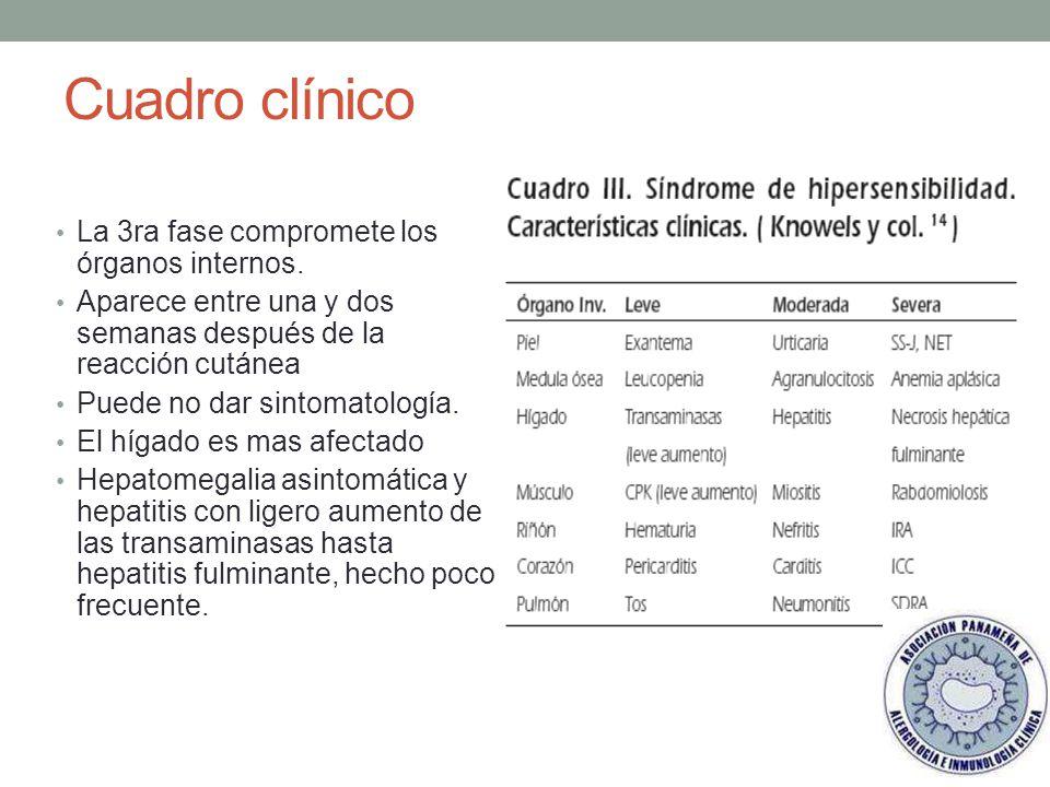 Cuadro clínico La 3ra fase compromete los órganos internos.