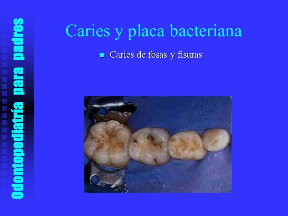 Caries y placa bacteriana