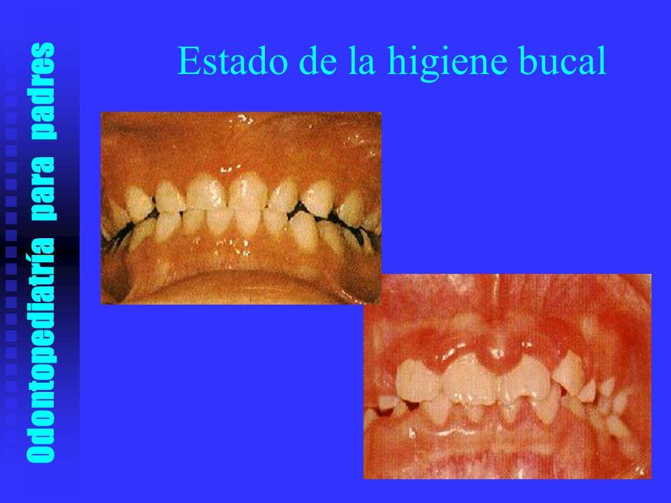 Estado de la higiene bucal
