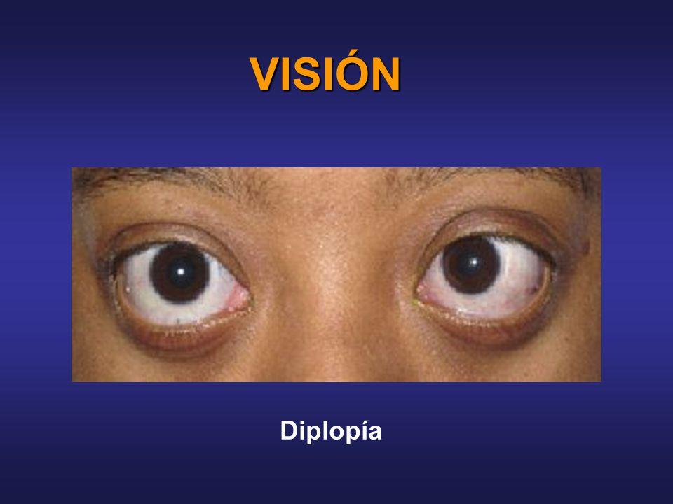 VISIÓN Diplopía