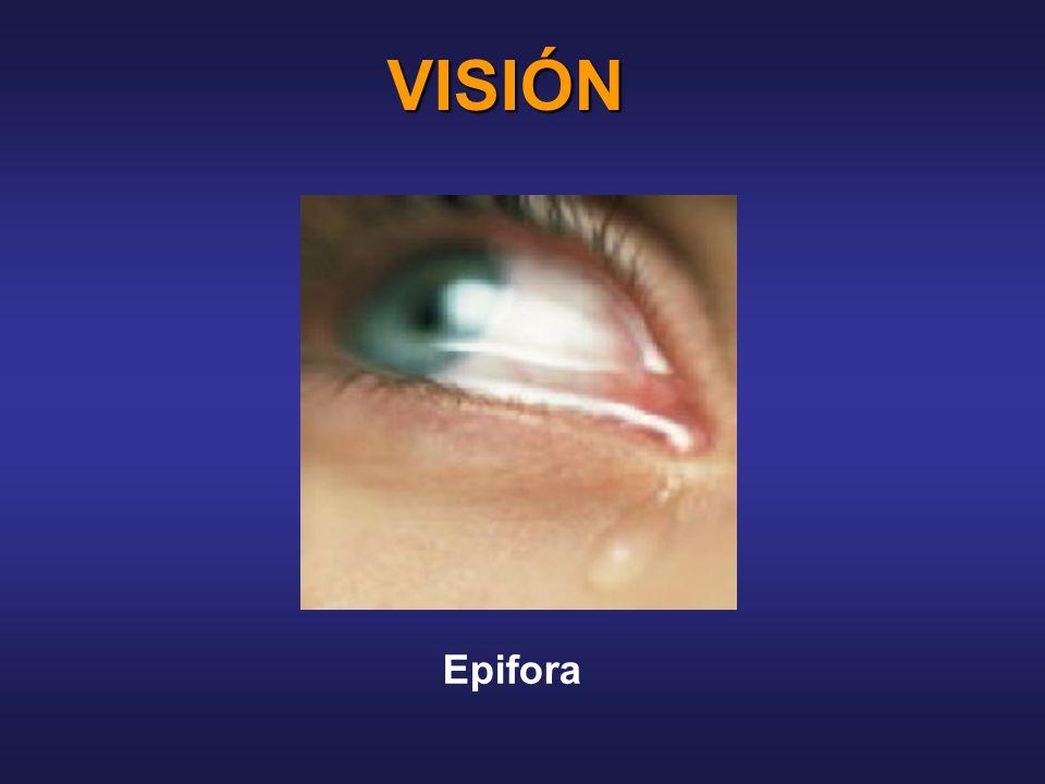 VISIÓN Epifora