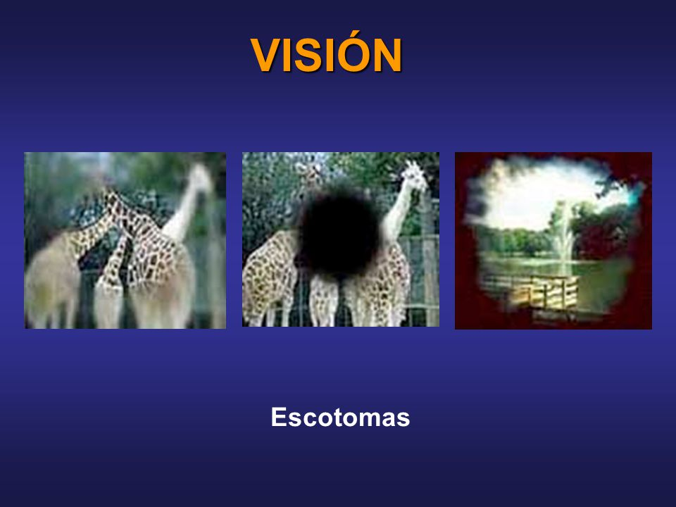 VISIÓN Escotomas